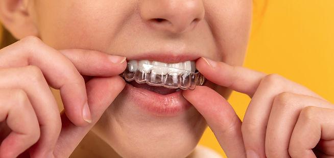 ostéopathie et orthodontie