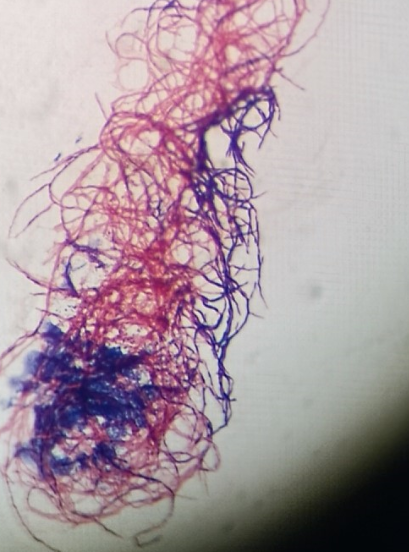 P2 Figure 3 Mixed Gram-stain.png