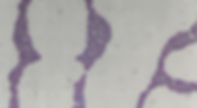 P2 Figure 1 Positive Gram-stain.png