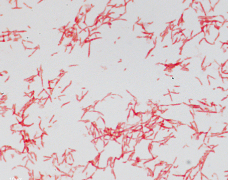 Assessing Gram-stain error rates within the pharmaceutical microbiology laboratory