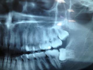 Dentes Inclusos
