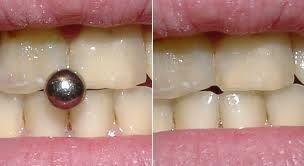 Piercing Oral, Se Não Tem como Vencê-Lo... Oriente o Paciente!