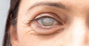 cataract-surgery-complications-1200x630.