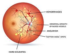 Exeter-Eye-Diabetic-Retinopathy-eye-diag