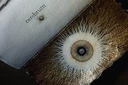 SENTENTIA cerebrum (fragment)