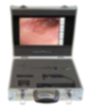 All-in-One Portable Video Otoscope System with carry case