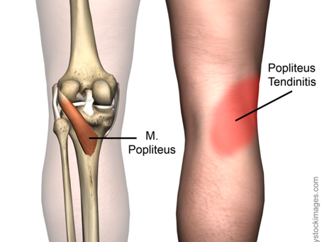 The Popliteus, the Tiny Muscle of Knee Pain!