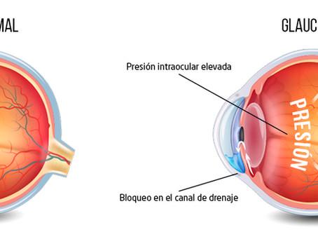 Tensión ocular ¿Qué riesgos implica?