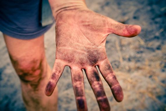 handen-vies-huid-vingers.jpg