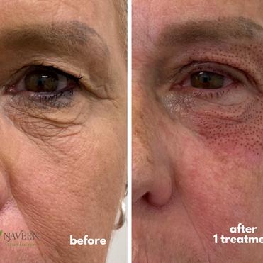 PlasmaLift Under Eye Treatment