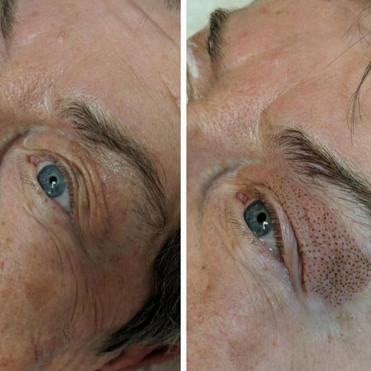 PlasmaLift Eyelid Lift