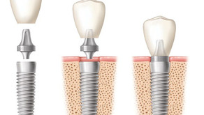 Singapore Zygoma dental implants and bad foods