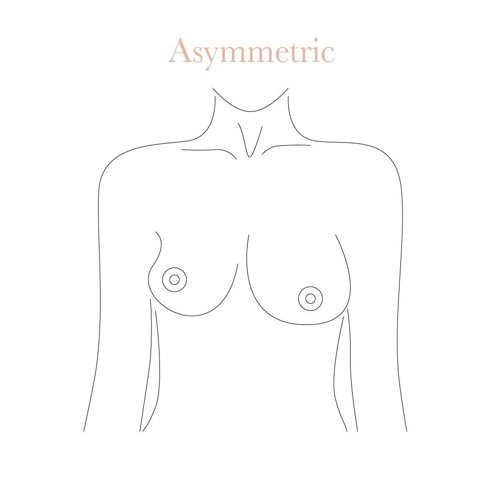 Asymmetric boobs shape