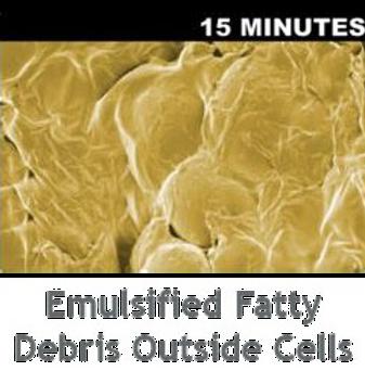 Emulsifies_Fatty_Debris_Outside_Cells.pn