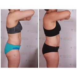 Lost 9 3/8 overall inches, Lost 6.6 pounds / 4.8 pounds of fat