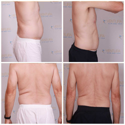 Lost 9.75 overall inches, 17 pounds total, 10.2 pounds of fat