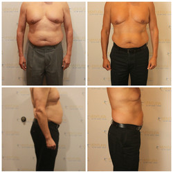 Lost 17.5 inches, 10.8 pounds total, 7.8 pounds of fat