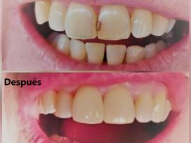 Restauraciones en Clínica Odontostetic