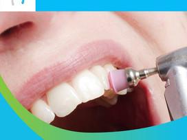 Limpieza Dental en Odontostetic.cl