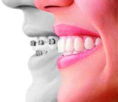 Nuevas Técnicas en Blanqueamiento Dental