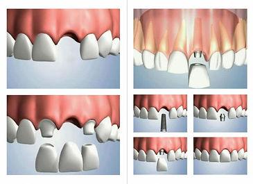 Reabilitação Oral | Santa Cecilia | Higienópolis | www.odontologiamiasiro.com