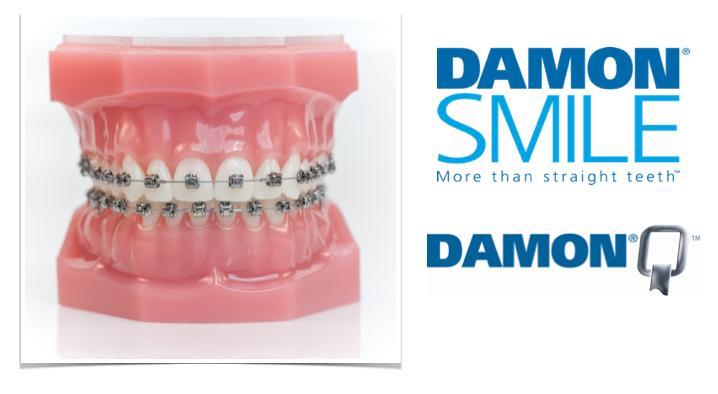 Damon System. www.odontologiamiasiro.com
