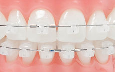 Santa Cecilia | Higienopolis | Ortodontia | www.odontologiamiasiro.com | Damon System | Invisalign