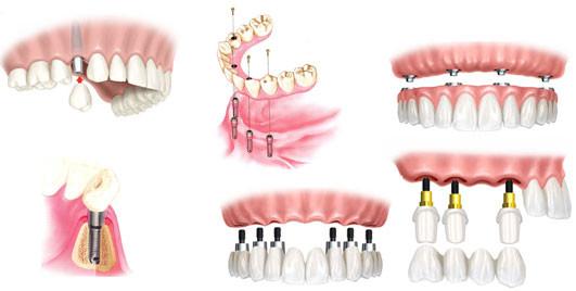 Implantes dentários: www.odontologiamiasiro.com