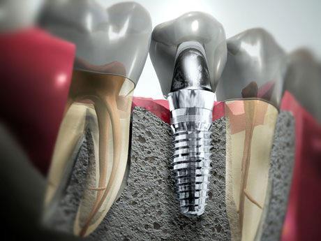 Implantes dentários: odontologiamiasiro.com