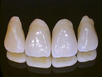 Estética Dental | Santa Cecilia | Higienópolis | Dentistas