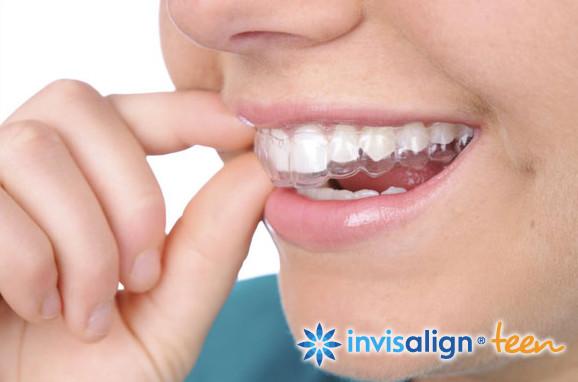 Alinhadores Invisalign (Align Technology /EUA*): www.odontologiamiasiro.com