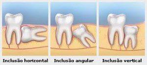 """""""Dentes do Siso""""- Terceiros molares."""