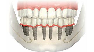 Implantes dentários   Santa Cecília   Higienópolis   www.odontologiamiasiro.com