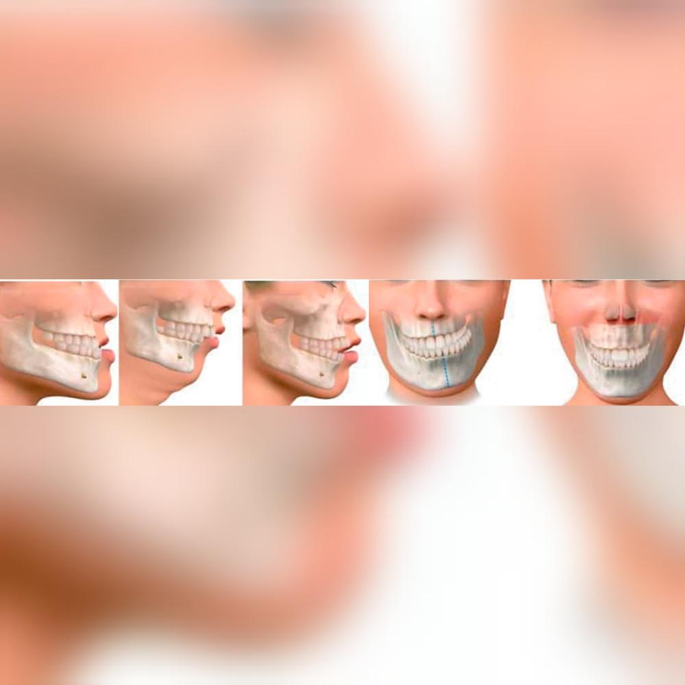 Cirurgia ortognática para correção das alterações faciais. www.odontologiamiasiro.com