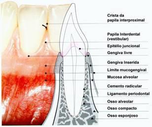 "Doença Periodontal: ""problema gengival"", ""Periodontite"""