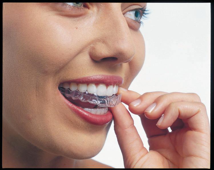 Invisalign, correção sem fios e bráquetes www.odontologimiasiro.com