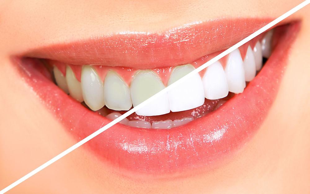 Tratamento por clareamento dentário