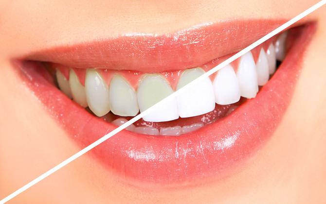 Branqueamento dentário: quais opções existem? (Clareamento)