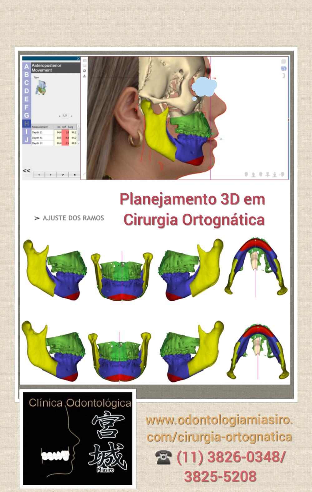 Cirurgia Ortognática | ww.odontologiamiasiro.com