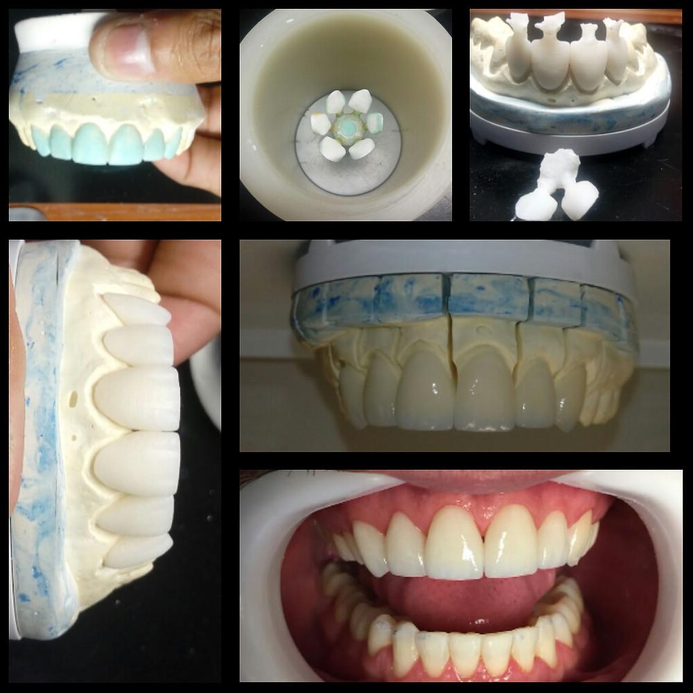 Sequencia de elaboração das lentes de contato dental