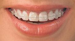 Invisalign | www.odontologiamiasiro.com | Damon System | Smart clip