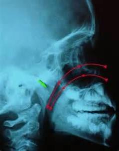 Telerradiografia lateral