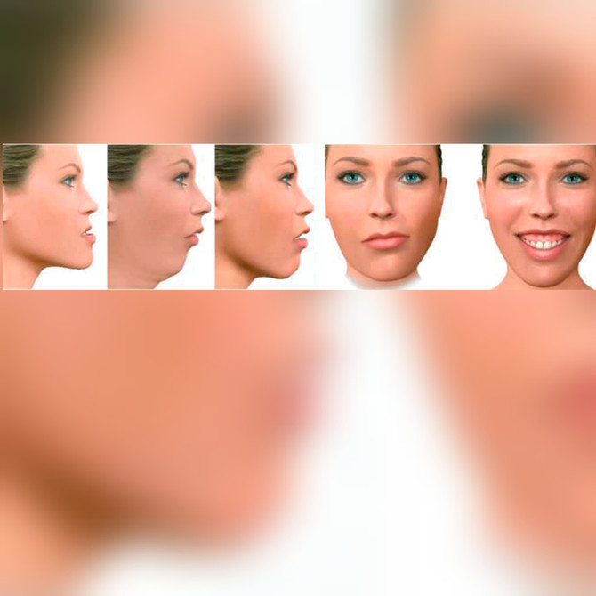 Preparo ortodôntico para Cirurgia Ortognática: tratamento Deformidades Dentofaciais