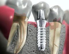 Implantes dentários | Santa Cecília | Higienópolis | Especialistas | www.odontologiamiasiro.com
