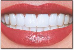perfect_teeth