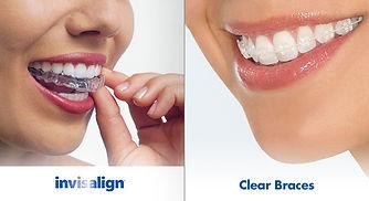 Ortodontia | Ortodontista | Santa Cecilia | Higienopolis | www.odontologiamiasiro.com | Invisalign