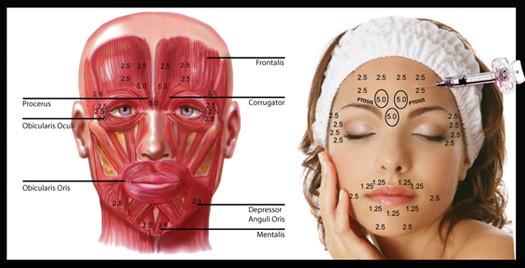 Toxina botulínica (BOTOX® ) na Odontologia