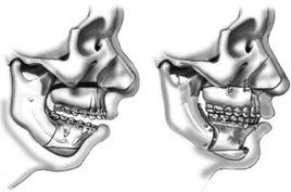 Cirurgia Ortognática | Santa Cecília | Higienópolis | www.odontologiamiasiro.com