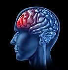 bigstock-Human-brain-with-red-head-ache-