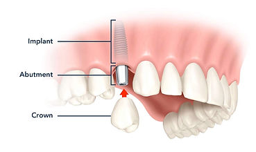 CSC-tooth-implant-general.jpg